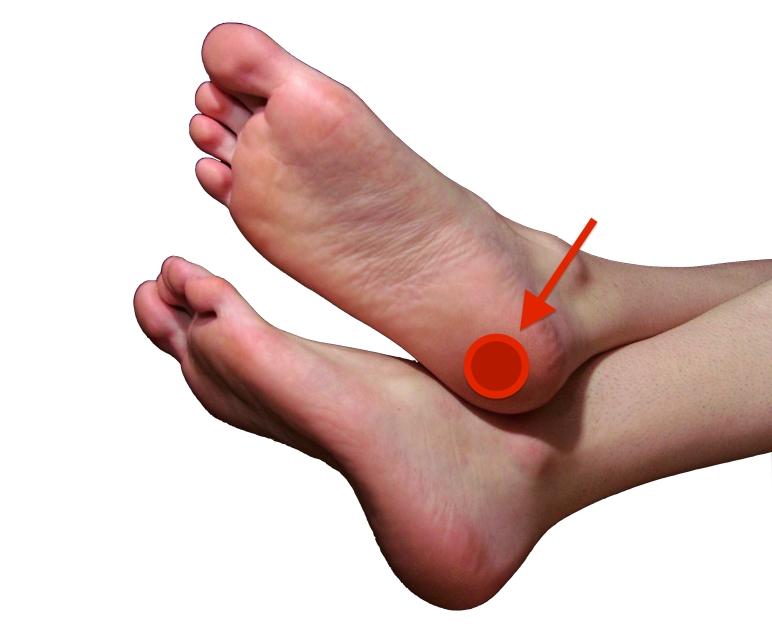 heel bursitis pain