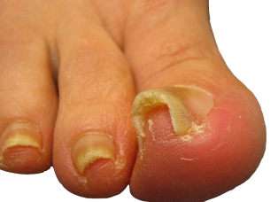 ingrown toenail pain