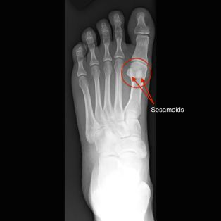 sesamoid bones in foot