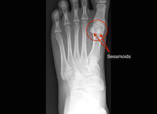 sesamoid bones in foot