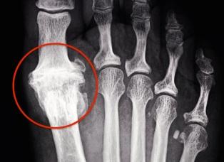 great toe joint arthritis
