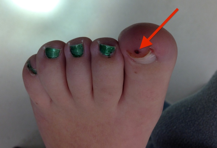 melanoma on toe