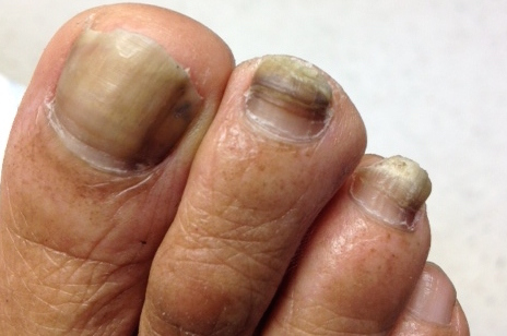 What Can Be Done About A Thick and Painful Toenail? | Scott Kilberg