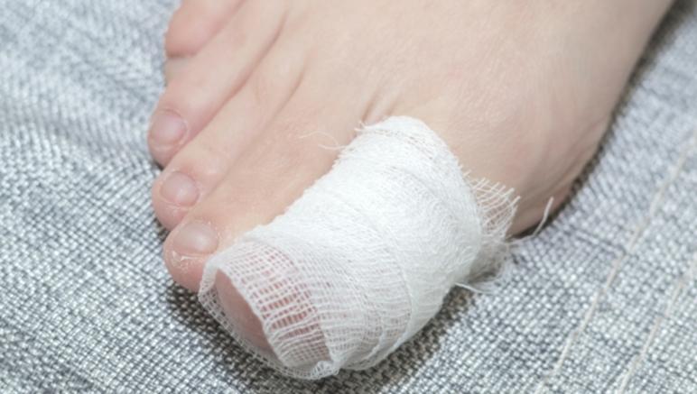 toe injury