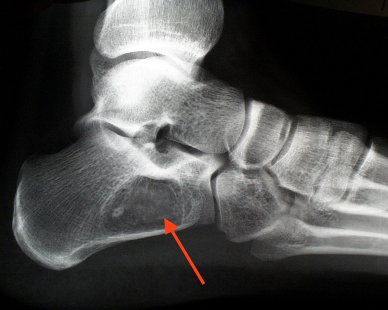 bone tumor foot